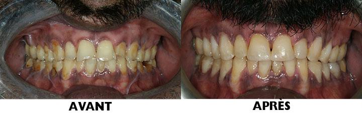 Image d'un plombage en composite blanc (avant et après)
